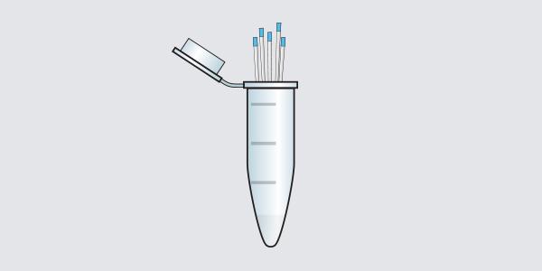 Toma de muestra de fluido crevicular